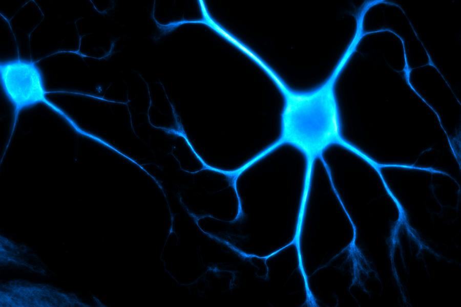 human fibroblast